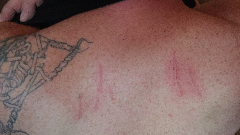 scratches1