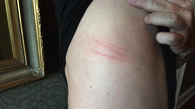 scratches2